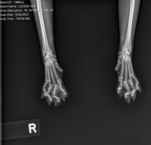 Ser Skiffington's x-rays showing the damage that the declawing process had caused internally.